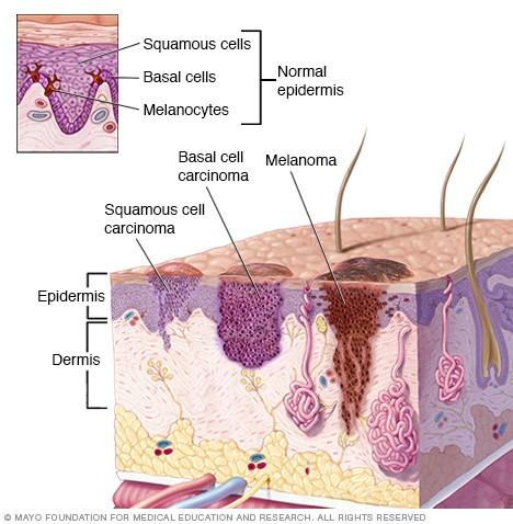 vad är hudcancer